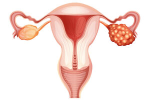 Women's diseases that go without symptoms